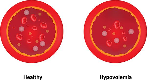 bleeding (Hypovolemia)
