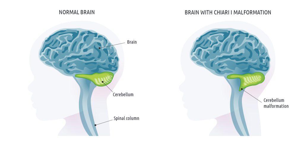 Chiari malformation symptoms
